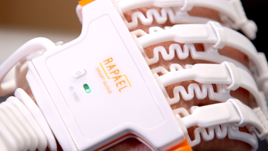 This smart glove turns physical therapy into a game