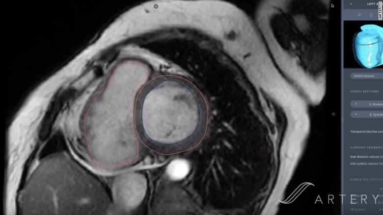 radiologists cardiac mri