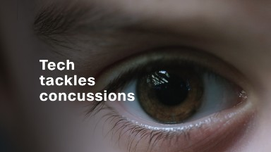 Make a figure 8 with your eyes: Tech to tackle concussions