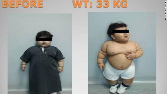 bajar de peso niños