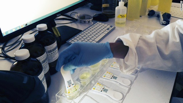 A Scandu employee tests Scanaflo urine tests. The results are imported into a smartphone app by taking a photo of the paddle.