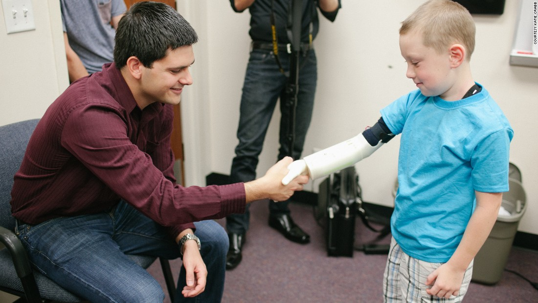 College kids make robotic arms for children without real