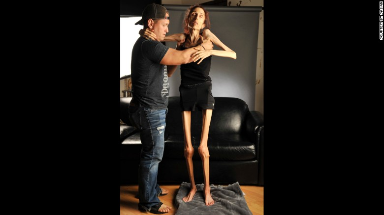 skinniest woman in the world nude