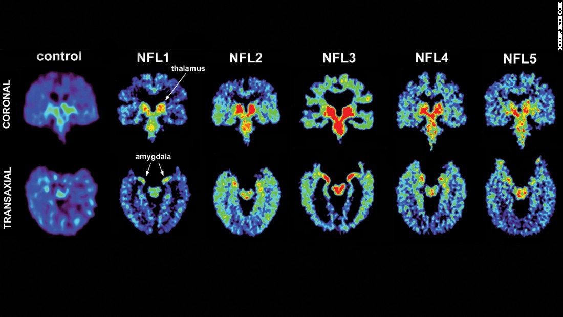 nfl players and chronic traumatic encephalopathy 111 of those brains belonged to former nfl players and, of those, 110 had cte  pathology, prompting many news outlets to trumpet the news.
