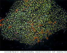 stem_cells.03.jpg