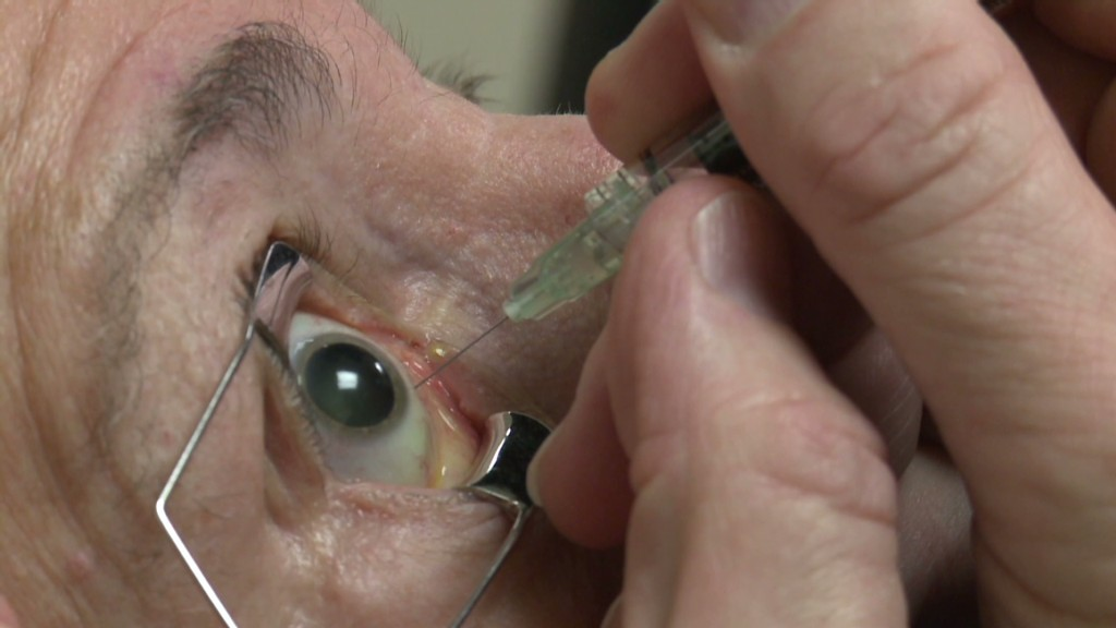 Eyeball injections equal eye-popping profits